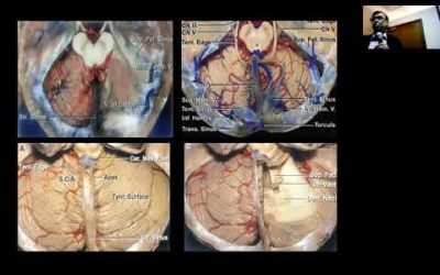 """Jordan Neurosurgery Grand Rounds: Jan 2, 2019: """"Surgery of Brain Stem Lesions"""""""